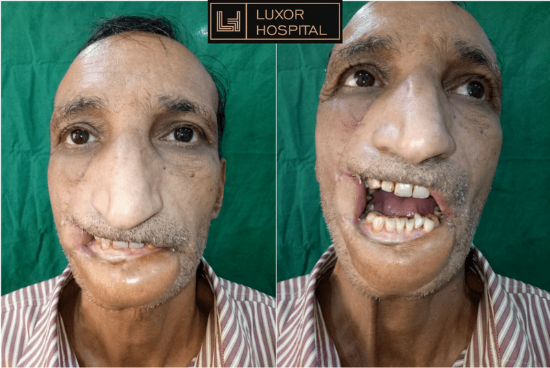 Dr Saumya Nayak performed a mouth opening surgery at Luxor Hospital.