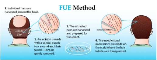 Best hair transplant surgery hospital in Vadodara