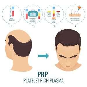PRP - Platelet-Rich Plasma
