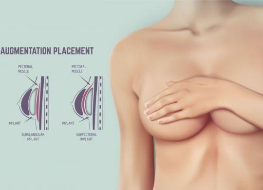 breast-augmentation-surgery-in-vadodara